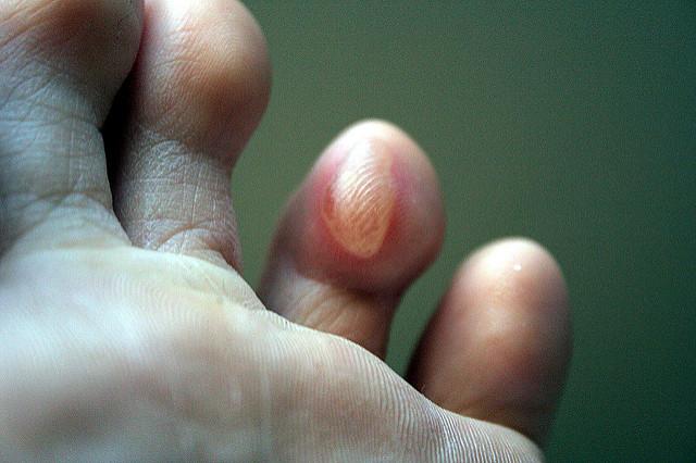 Ampoule sur un doigt de pied.